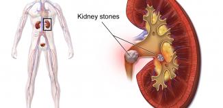 What Causes Kidney Stones