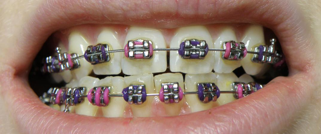 How Much Do Braces Cost for Adults and Kids