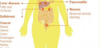 morbid obesity conditions