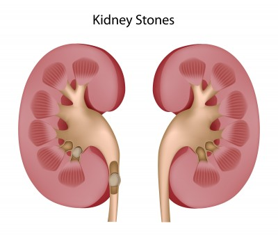 Kidney Stones Archives Access 2 Knowledge