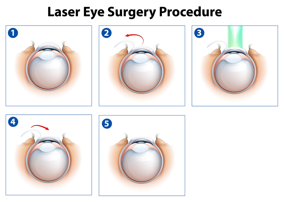 Lasik eye surgery coupons