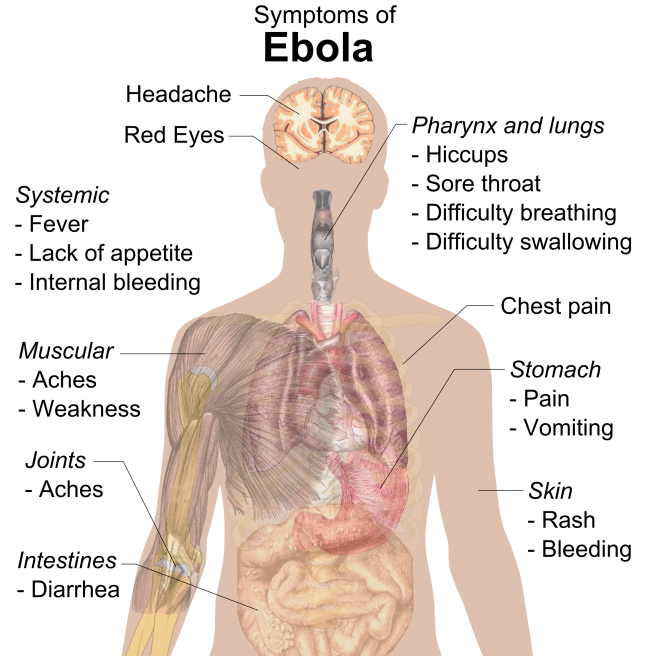 what are the symptoms of ebola visual representation