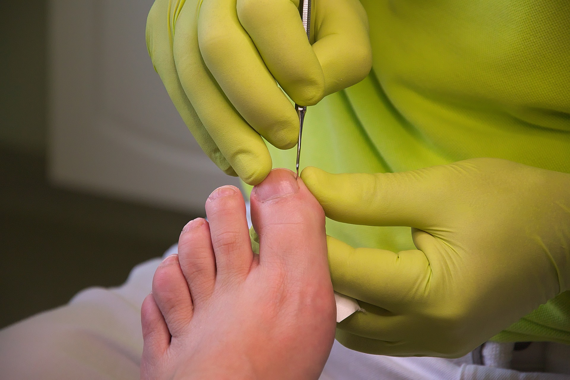A person wearing a green gloves doing podiatry